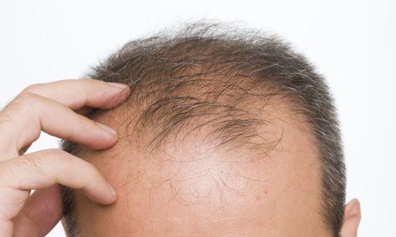 Innéov Densilogy, evita la caída de pelo