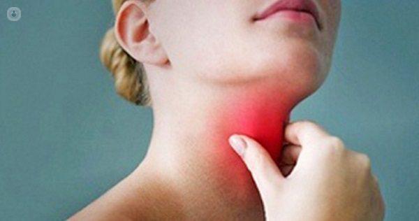 Síntomas de la fiebre reumática